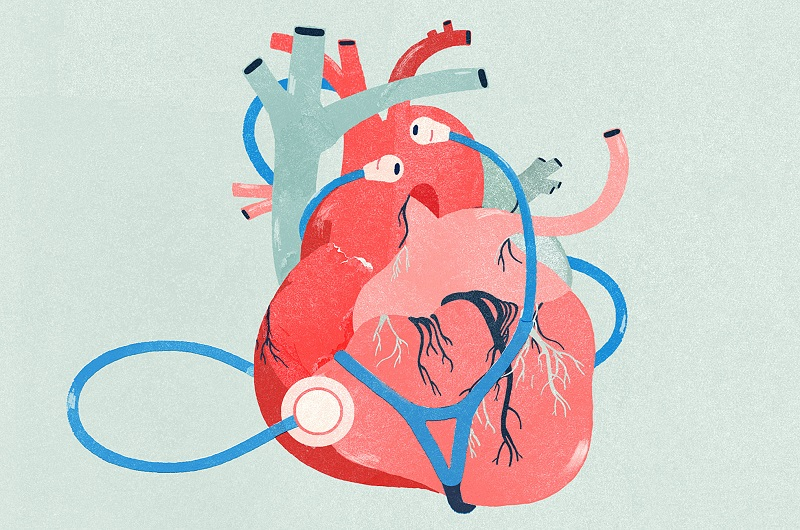 Understand About The Demand For Interventional Cardiologist