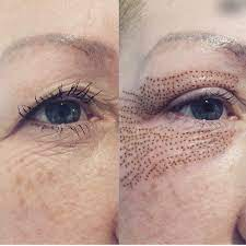 Non-surgical Upper Eyelid Lifting: How Does It Work?