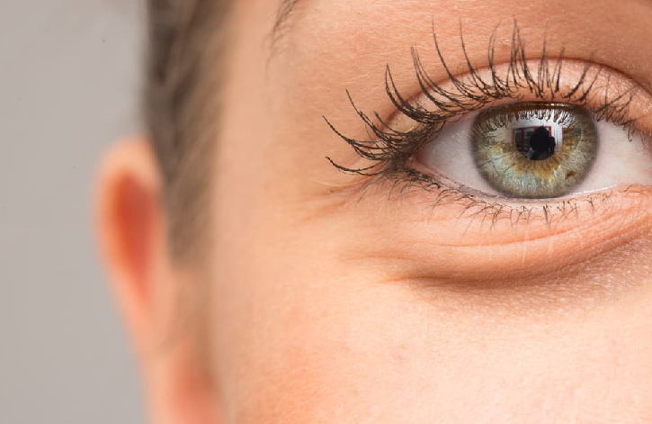 Do You Have Swollen Eyes Due to Allergies? Here's what You Need to Do